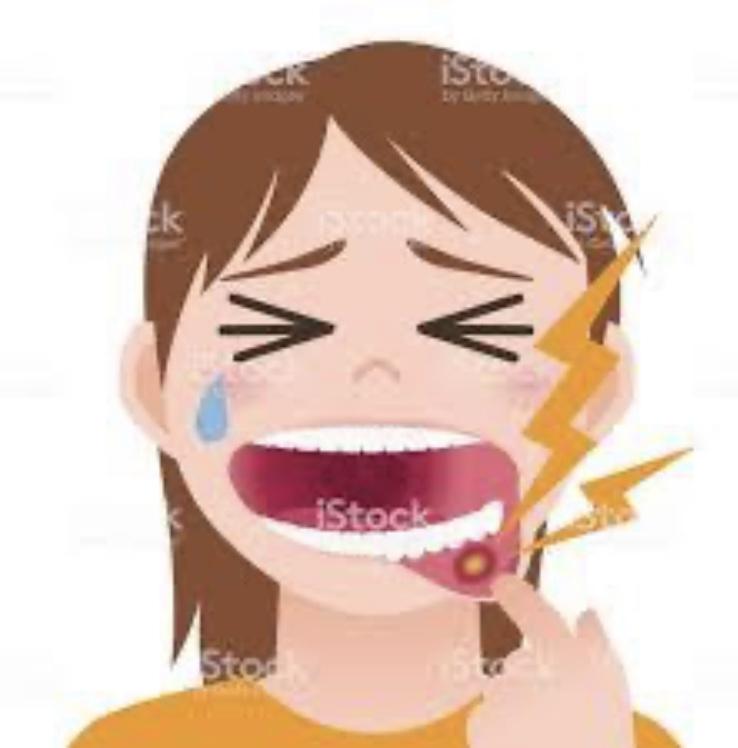 口内炎にオンガード